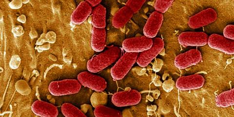 Bactérie E.Coli